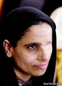 Zakia before her surgery