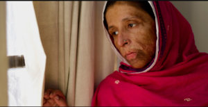 Rukhsana- she was unable to receive her surgery during the filming of the documentary due to her pregnancy.